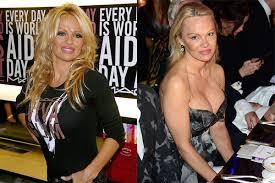 Pam Anderson Halloween Costume Pamela Anderson 4 Expert Derms Explain