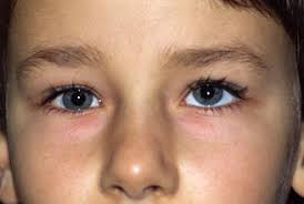 different eye sizes causes treatments md health com
