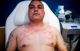 what were you inking u0027 inside a tattoo removal clinic