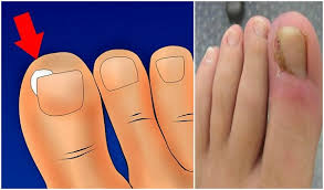 how to treat and remove an ingrown toenail yourself at home