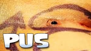 yellow puss filled ingrown hair ingrown hair pus filled abscess pilonidal cyst youtube