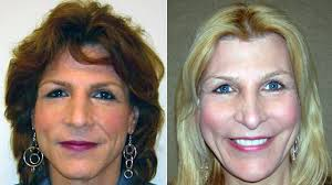 feminization haircut stories facial feminization surgery gives new life to women who look like