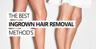 how to remove ingrown hair in thigh the best ingrown hair removal method
