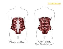 stomach muscles after c section no tummy tuck required 5 ways to flatten abs the dia method