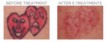 laser tattoo removal hull dermatology u0026 aesthetics
