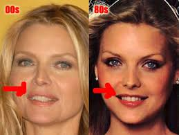 Michelle Pfeiffer: the case for fillers? (image hosted by audreygriselda.multiply.com)