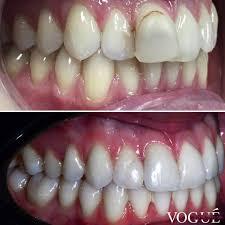 vogue dental studios home facebook