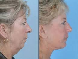 hairstyles for people with large head and jowls sagging jowls trick 1 face exercises to lose face fat firm