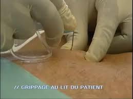 pose d une chambre implantable chambre à cathéter implantable présentation très détaillée vidéo