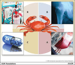 bone disease in myeloma the claws of crab clinical cancer research