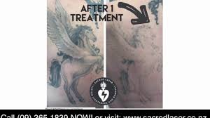 best laser tattoo removal results after treatment call 09 365 1839