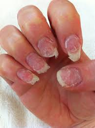 this can occur when moisture collects under acrylic nails it is