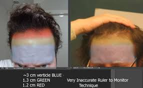 Azelaic Acid Hair Loss Hair Loss Help Forums What Stage Of Hair Loss Do I Have