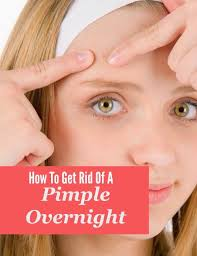 How To Remove Blind Pimple Best 25 Pimples Overnight Ideas On Pinterest Clear Acne