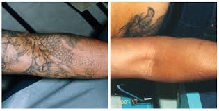 laser tattoo removal by south coast medspa 877 650 scms 7267