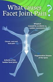 8 best facet joint images on pinterest chronic pain