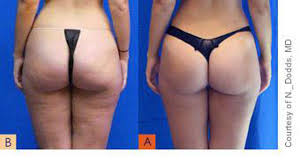 red light therapy cellulite cellulite reduction treatments dallas innovations medical
