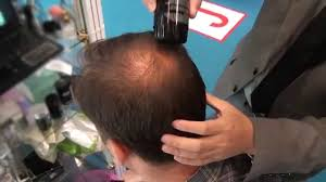 haircuts for crown bald spots hair thinning on the crown youtube