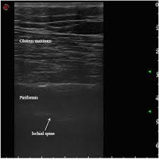 toxins free full text ultrasound guided injection of botulinum