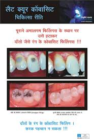 light cure composite filling visible amalgam fillings replaced with tooth coloured composite