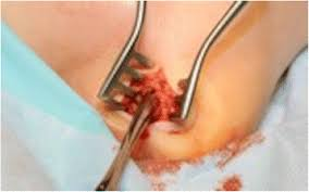 Os Calcaneus Transverse Incision Above Os Calcis To Drain Pus Figure 5 Of 7