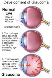 What Causes Eye Blindness Glaucoma Academy Of Eye Care