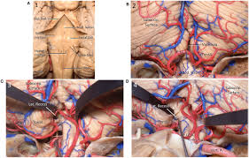 Brainstem Mass Frontiers Surgical Application Of The Suboccipital Subtonsillar