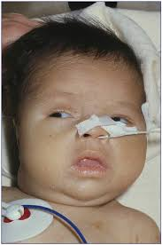 What Causes Blindness At Birth Disorders Of The Thyroid Gland In Infancy Childhood And