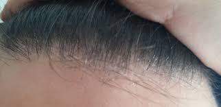 prurito testa e corpo dermatite seborroica cause rimedi e cura della dermatite seborroica