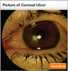 Signs And Symptoms Of Blindness Corneal Ulcer Healing Time Treatment Causes U0026 Symptoms