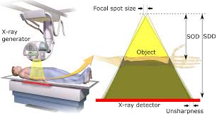 projectional radiography wikipedia