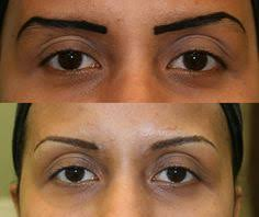 makeup classes pittsburgh before after restylane to the tear trough dr leong sistine