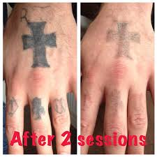 the missing ink laser tattoo removal private medical aesthetics