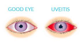 eye pain from light conditions santa lucía clínica oftalmológica