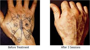 unwanted tattoo removal tattoo removal latest tattoo removal