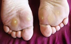 common infections of the foot and toes