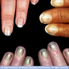 nails avonladykathy