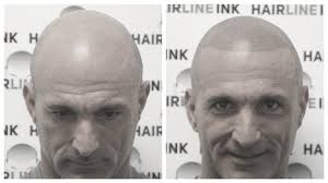 pics of scalp micropigmentation on people with long hair what is scalp micropigmentation smp explained hairline ink