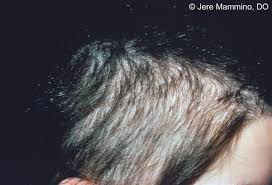womans hair thinning on sides hair loss american osteopathic college of dermatology aocd
