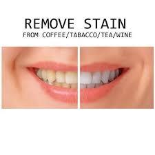 led light for teeth genkent teeth whitening kit led light tooth whiten bleaching
