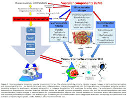 vascular disease in patients with multiple sclerosis a review