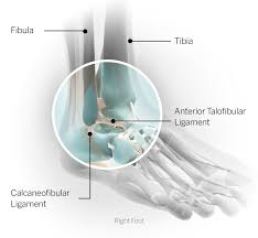 Lateral Collateral Ligament Ankle Sports Injury Glossary Everything You Need To Know From Head