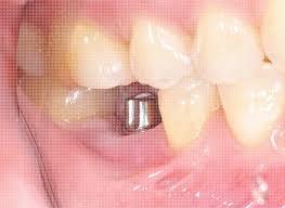 Comfort Dental Hampden Denver Dentist Deep Cleaning Root Scaling And Planing Gum