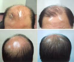 laser treatment hair growth om hair