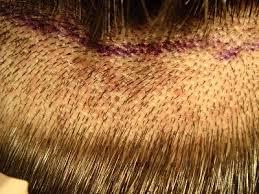 low hight hair high density vs low density hair transplant