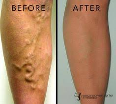 wisconsin vein center u0026 medispa offers laser tattoo removal using
