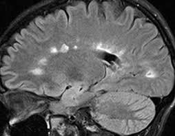Sagittal Brain Mri Anatomy Multiple Sclerosis Cervical Spinal Cord U2014 Clinical Mri