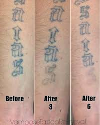 download small tattoo removal danielhuscroft com