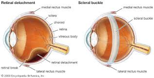 Diseases Of The Eye That Cause Blindness Human Eye Definition Structure U0026 Function Britannica Com