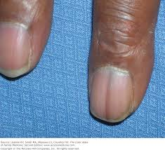 chapter 191 pigmented nail disorders the color atlas of family